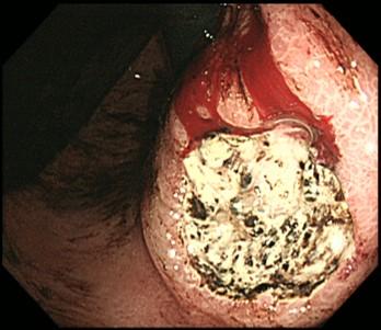胃潰瘍・十二指腸潰瘍