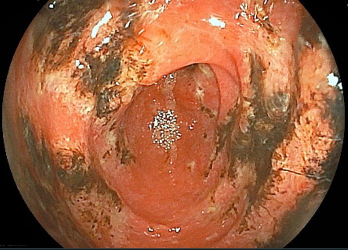 急性胃粘膜病変