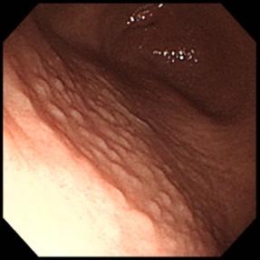 胃炎(慢性胃炎)について